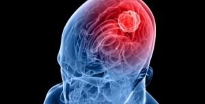 Allarme meningite